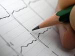 EKG test results #2