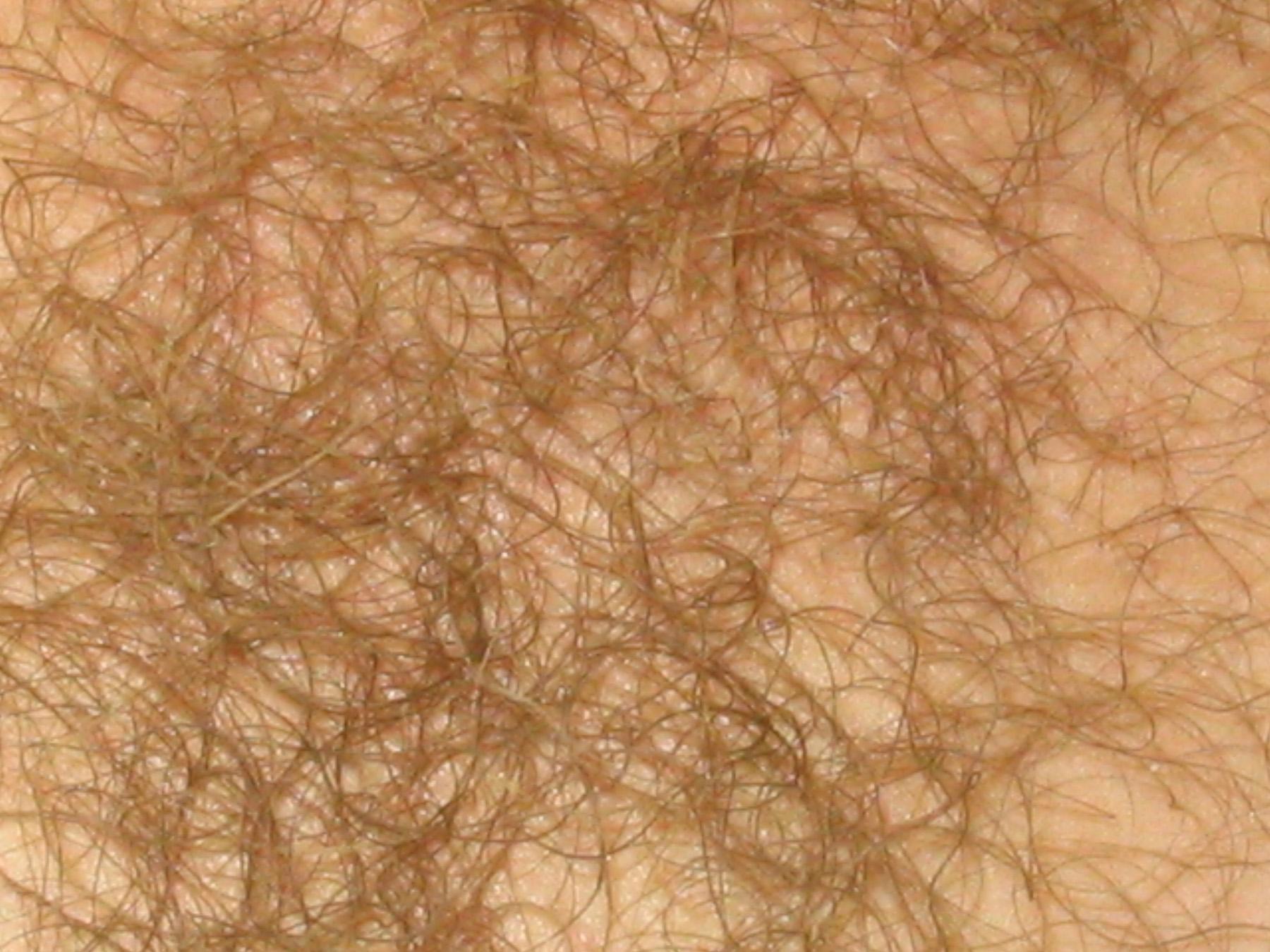 Фото пробиваются волосики, Волосы торчат из под купальника Случайное фото 1 фотография